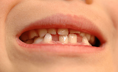 骨格矯正と歯列矯正からなる2段階治療