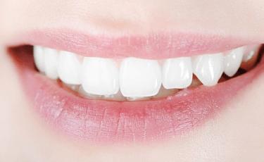 歯の見栄えの悩みには審美歯科治療